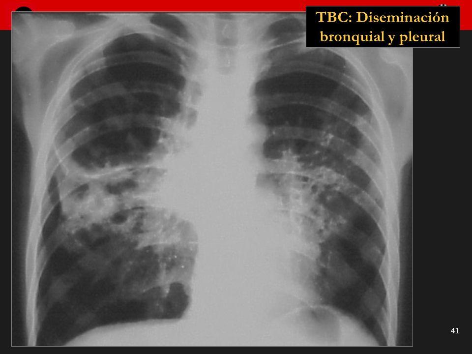 Seminario de Radiología Torácica 41 TBC: Diseminación bronquial y pleural