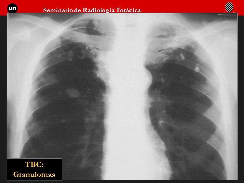 Seminario de Radiología Torácica 42 TBC: Granulomas
