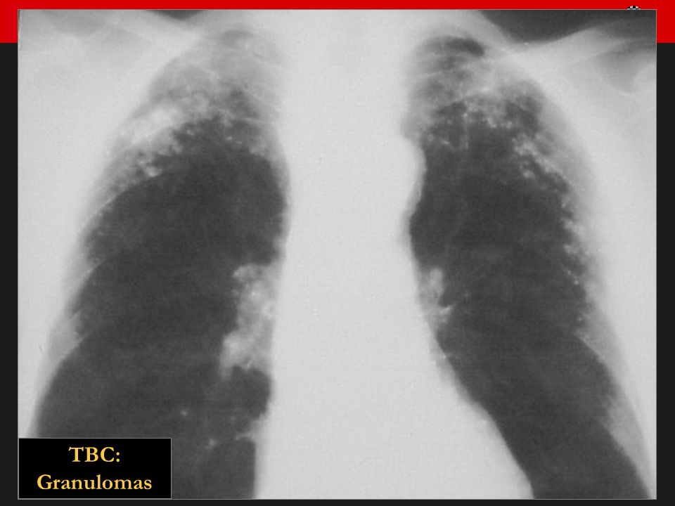 Seminario de Radiología Torácica 43 TBC: Granulomas