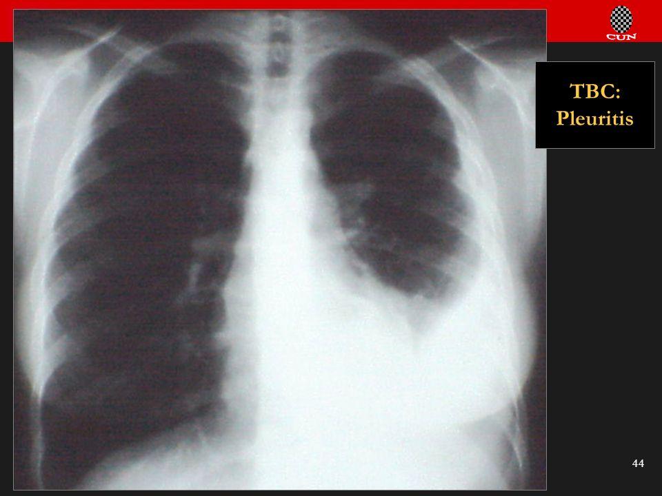 Seminario de Radiología Torácica 44 TBC: Pleuritis