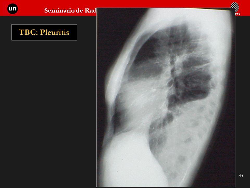 Seminario de Radiología Torácica 45 TBC: Pleuritis