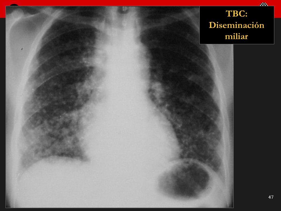 Seminario de Radiología Torácica 47 TBC: Diseminación miliar