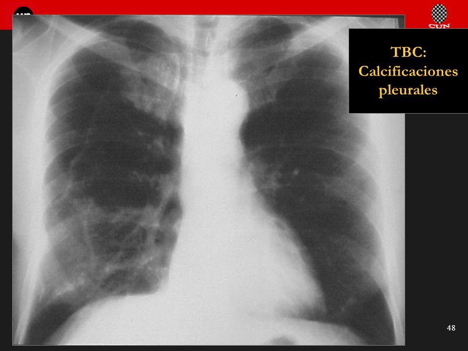 Seminario de Radiología Torácica 48 TBC: Calcificaciones pleurales