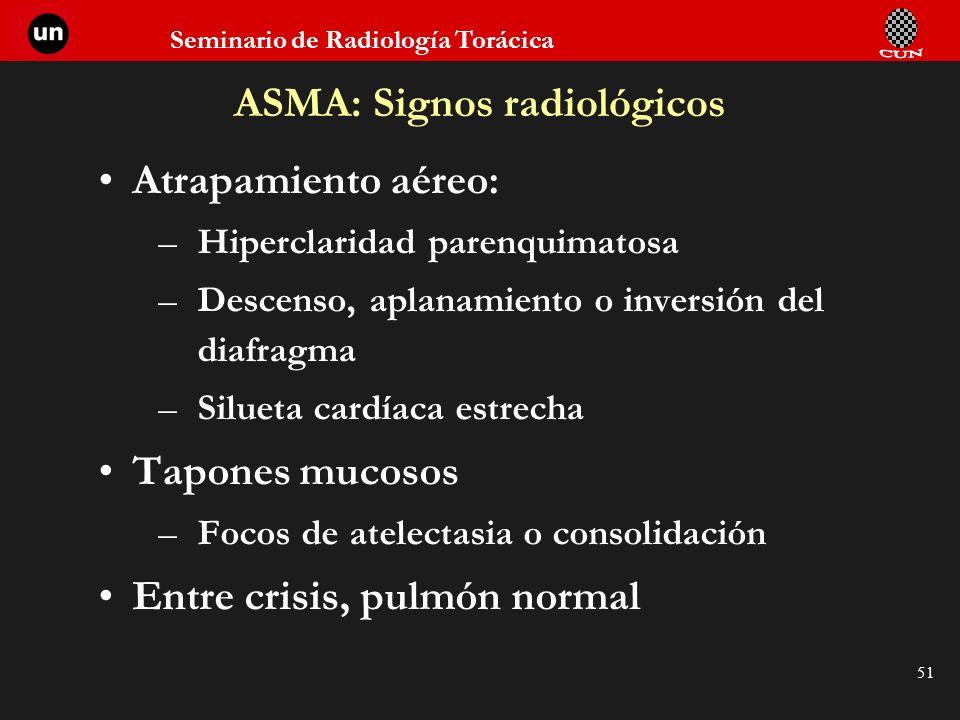 Seminario de Radiología Torácica 51 ASMA: Signos radiológicos Atrapamiento aéreo: –Hiperclaridad parenquimatosa –Descenso, aplanamiento o inversión de