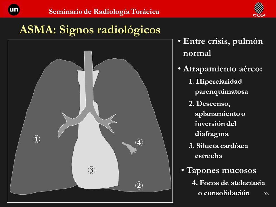 Seminario de Radiología Torácica 52 ASMA: Signos radiológicos Entre crisis, pulmón normal Atrapamiento aéreo: 1. Hiperclaridad parenquimatosa 2. Desce