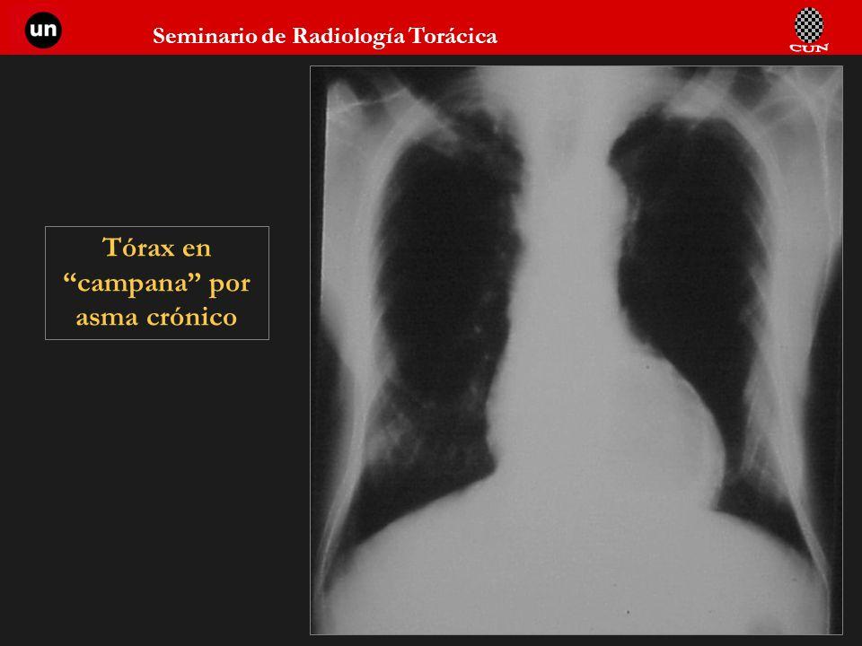 Seminario de Radiología Torácica 53 Tórax en campana por asma crónico