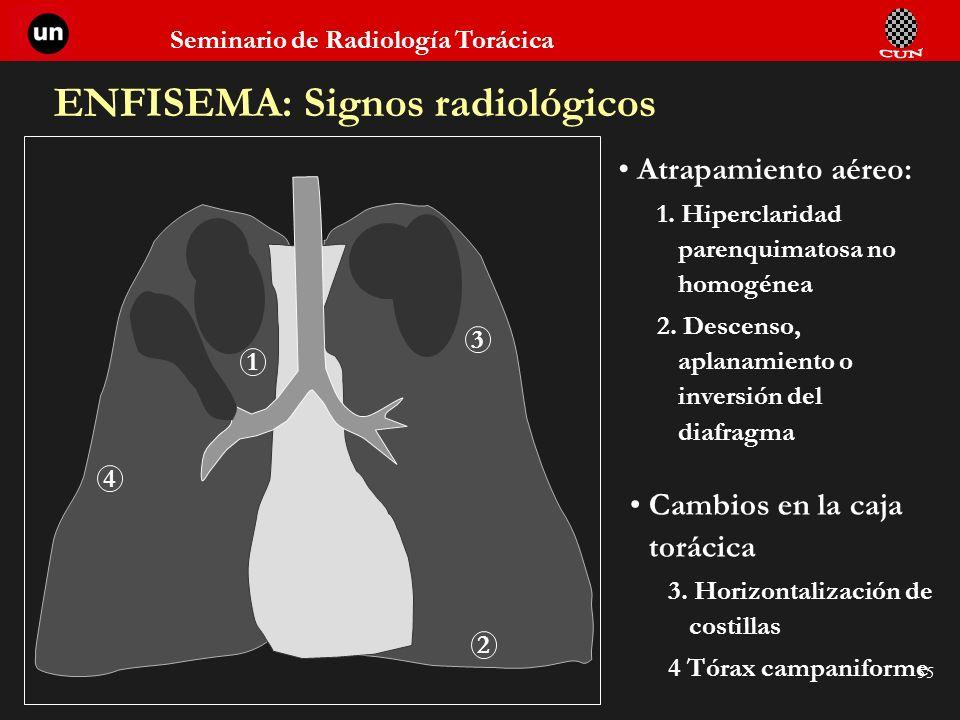 Seminario de Radiología Torácica 55 ENFISEMA: Signos radiológicos Atrapamiento aéreo: 1. Hiperclaridad parenquimatosa no homogénea 2. Descenso, aplana