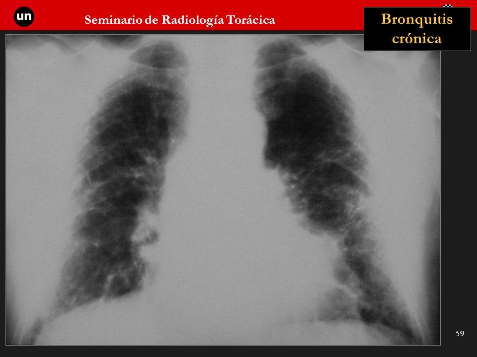Seminario de Radiología Torácica 59 Bronquitis crónica