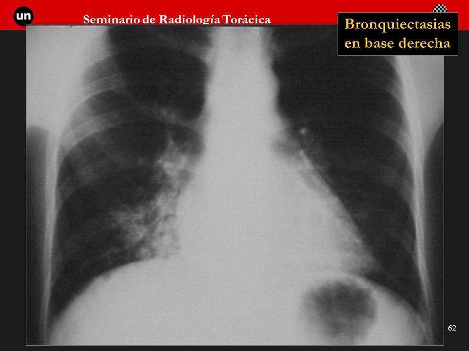 Seminario de Radiología Torácica 62 Bronquiectasias en base derecha