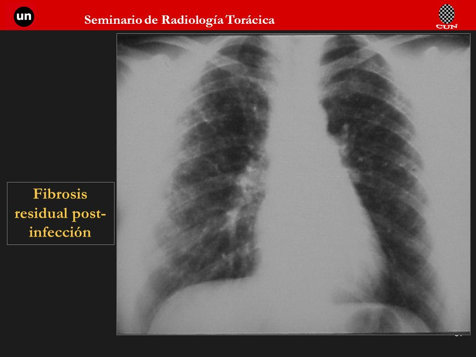 Seminario de Radiología Torácica 67 Fibrosis residual post- infección