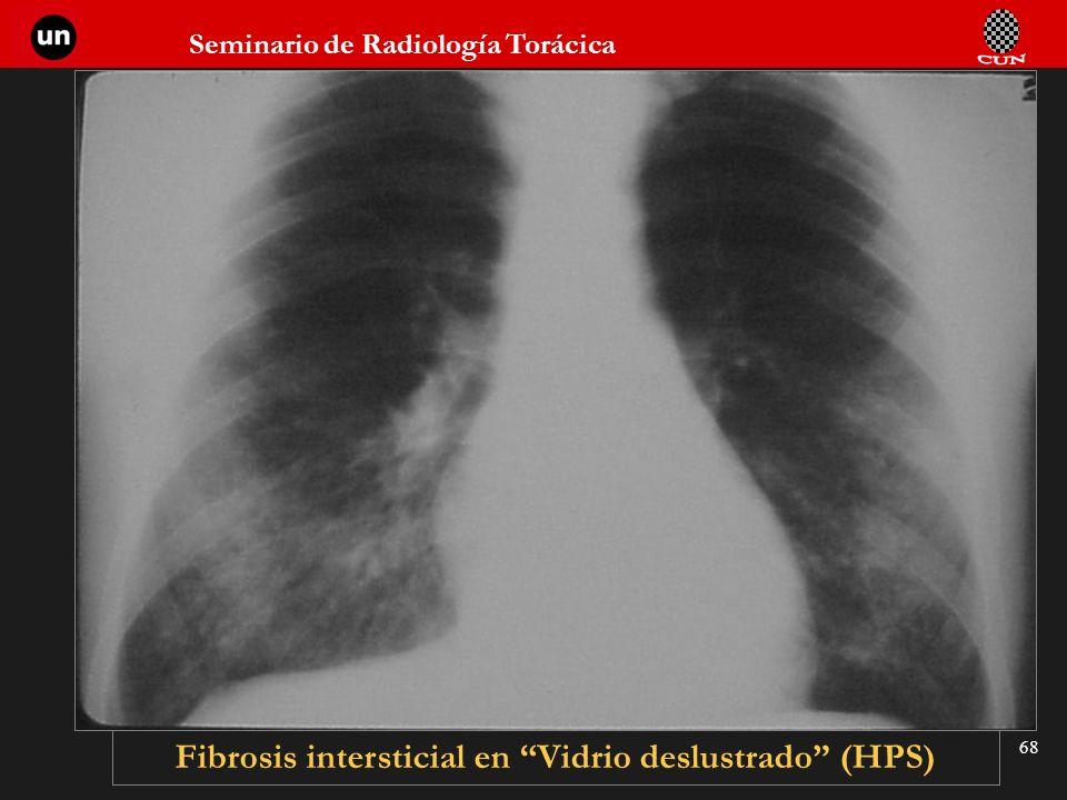 Seminario de Radiología Torácica 68 Fibrosis intersticial en Vidrio deslustrado (HPS)
