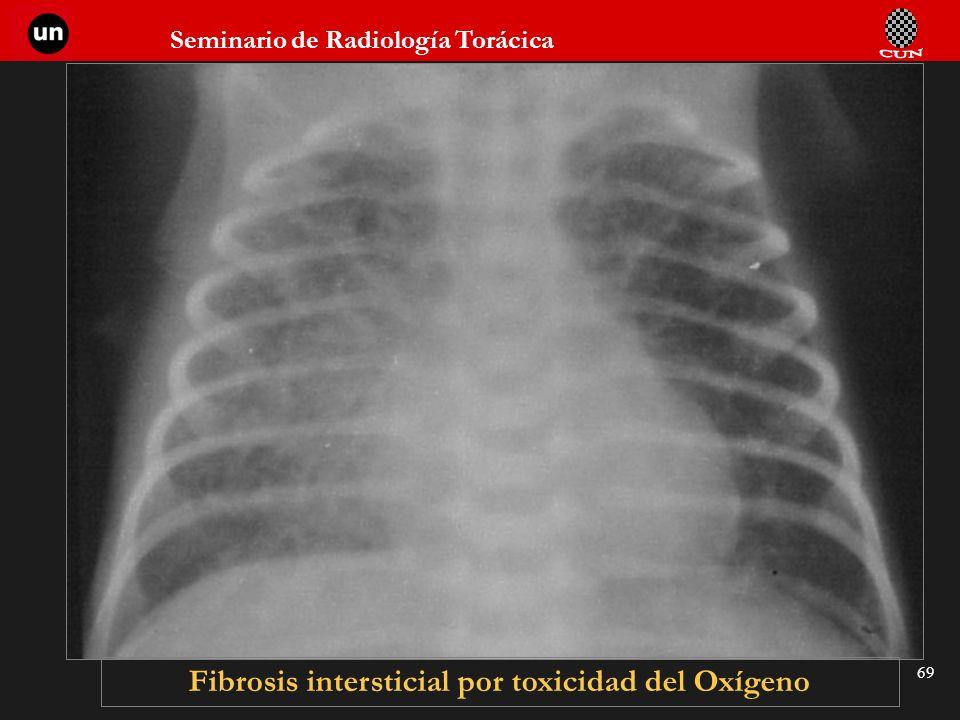 Seminario de Radiología Torácica 69 Fibrosis intersticial por toxicidad del Oxígeno