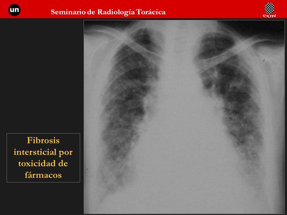 Seminario de Radiología Torácica 70 Fibrosis intersticial por toxicidad de fármacos
