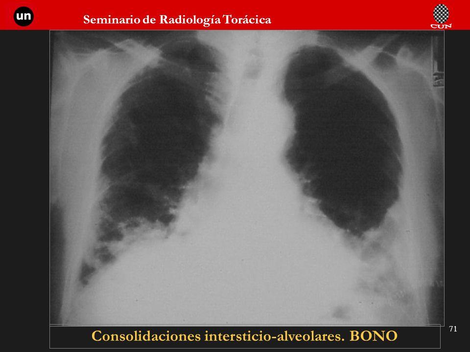 Seminario de Radiología Torácica 71 Consolidaciones intersticio-alveolares. BONO