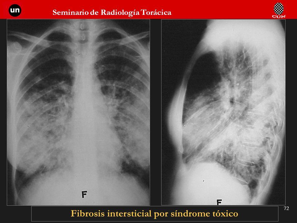 Seminario de Radiología Torácica 72 Fibrosis intersticial por síndrome tóxico