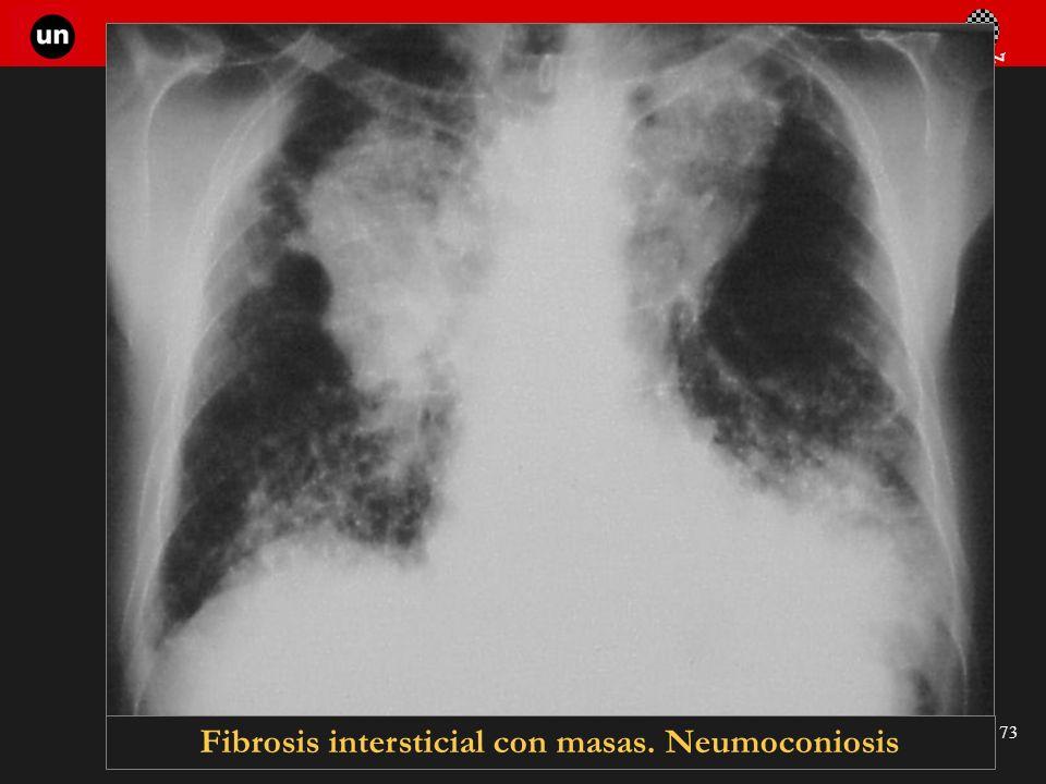 Seminario de Radiología Torácica 73 Fibrosis intersticial con masas. Neumoconiosis
