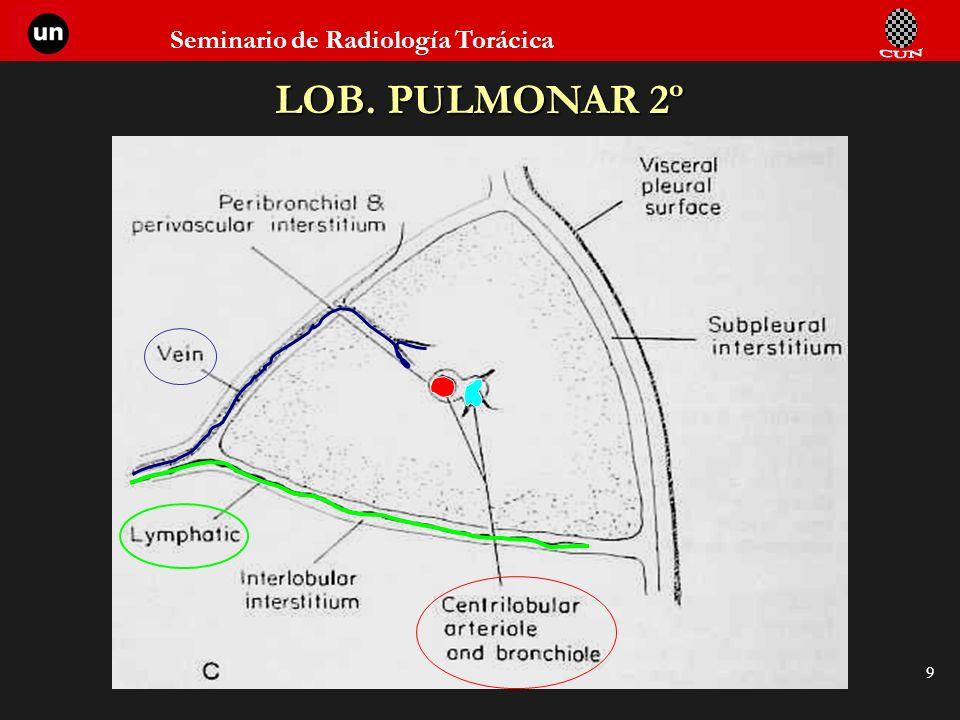 Seminario de Radiología Torácica 9 LOB. PULMONAR 2º