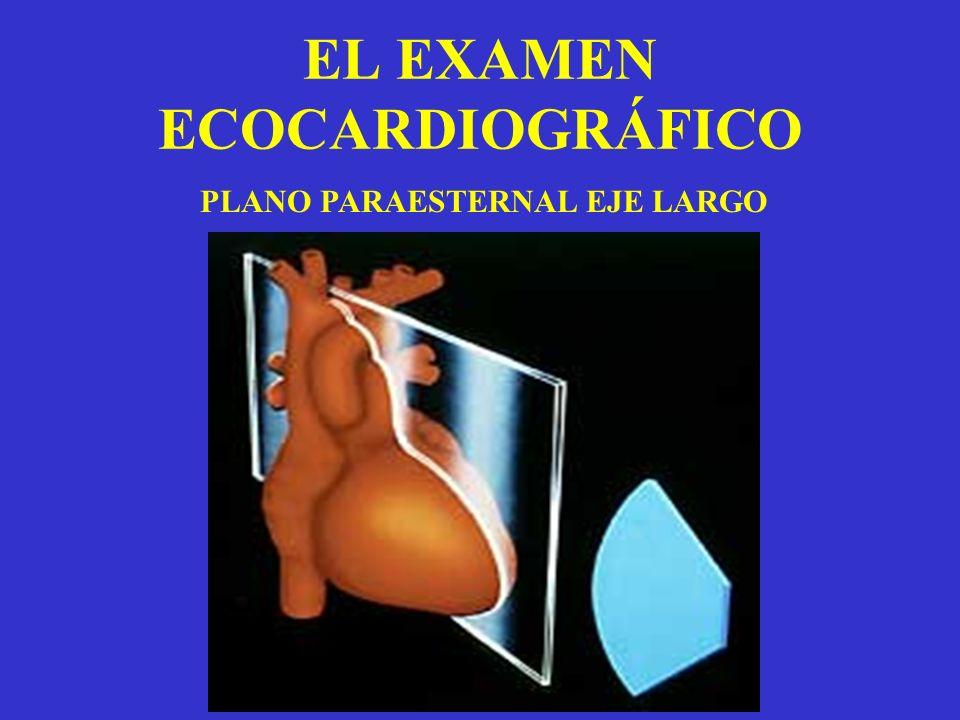 EL EXAMEN ECOCARDIOGRÁFICO PLANO PARAESTERNAL EJE LARGO