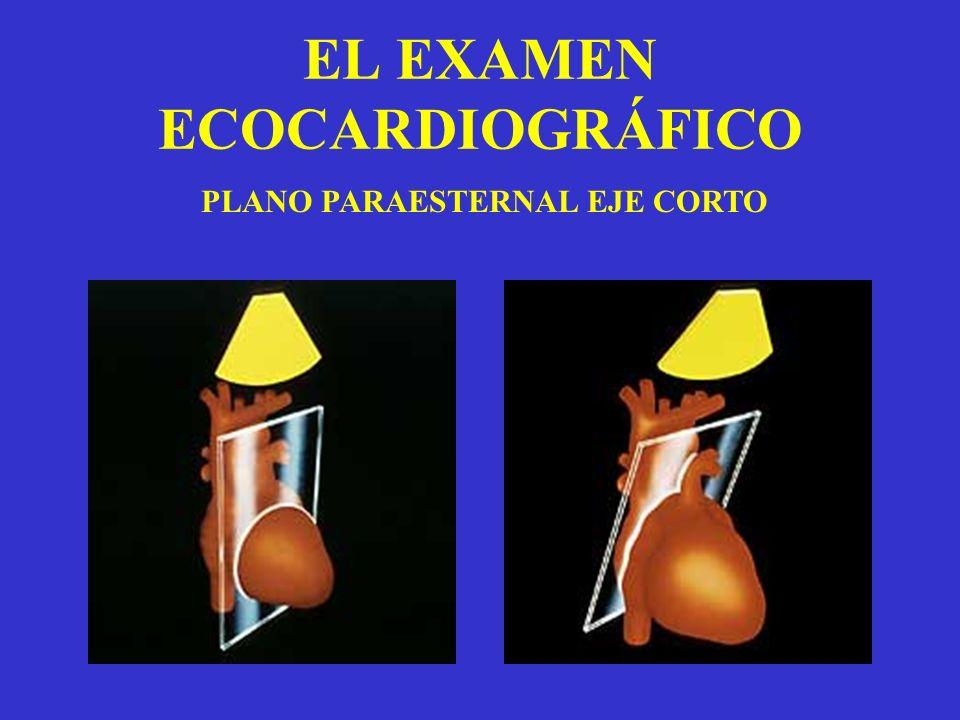 EL EXAMEN ECOCARDIOGRÁFICO PLANO PARAESTERNAL EJE CORTO