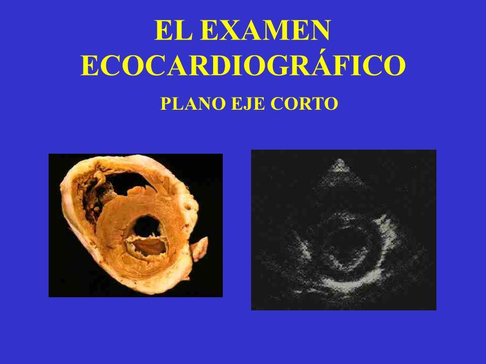 EL EXAMEN ECOCARDIOGRÁFICO PLANO EJE CORTO