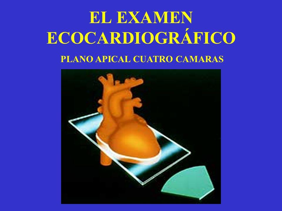 EL EXAMEN ECOCARDIOGRÁFICO PLANO APICAL CUATRO CAMARAS