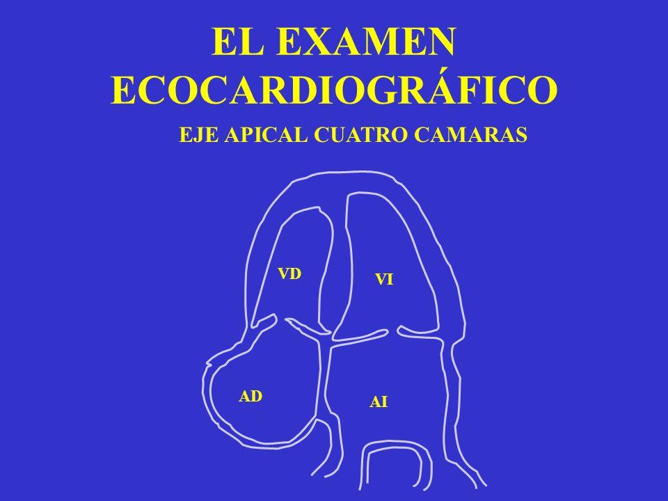 EL EXAMEN ECOCARDIOGRÁFICO EJE APICAL CUATRO CAMARAS VI VD AI AD