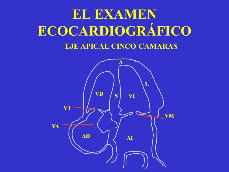 EL EXAMEN ECOCARDIOGRÁFICO EJE APICAL CINCO CAMARAS VI VD AI AD VT VM VA L A S
