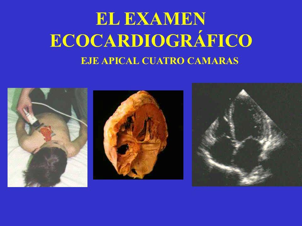 EL EXAMEN ECOCARDIOGRÁFICO EJE APICAL CUATRO CAMARAS