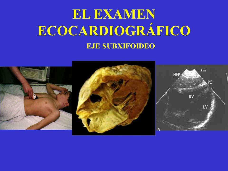 EL EXAMEN ECOCARDIOGRÁFICO EJE SUBXIFOIDEO
