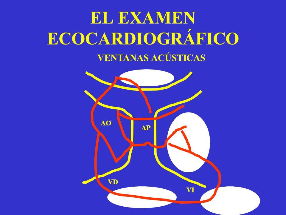 EL EXAMEN ECOCARDIOGRÁFICO AO VD VI AP VENTANAS ACÚSTICAS