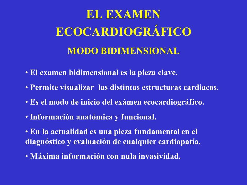 EL EXAMEN ECOCARDIOGRÁFICO MODO BIDIMENSIONAL El examen bidimensional es la pieza clave. Permite visualizar las distintas estructuras cardiacas. Es el