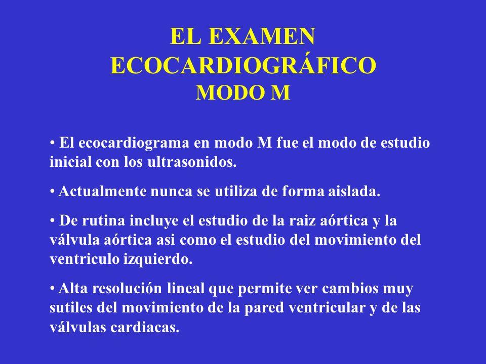EL EXAMEN ECOCARDIOGRÁFICO MODO M El ecocardiograma en modo M fue el modo de estudio inicial con los ultrasonidos. Actualmente nunca se utiliza de for