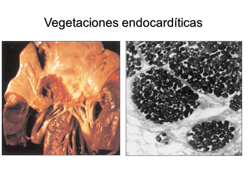 Endocarditis infecciosa AI VI Ao Localización de vegetaciones