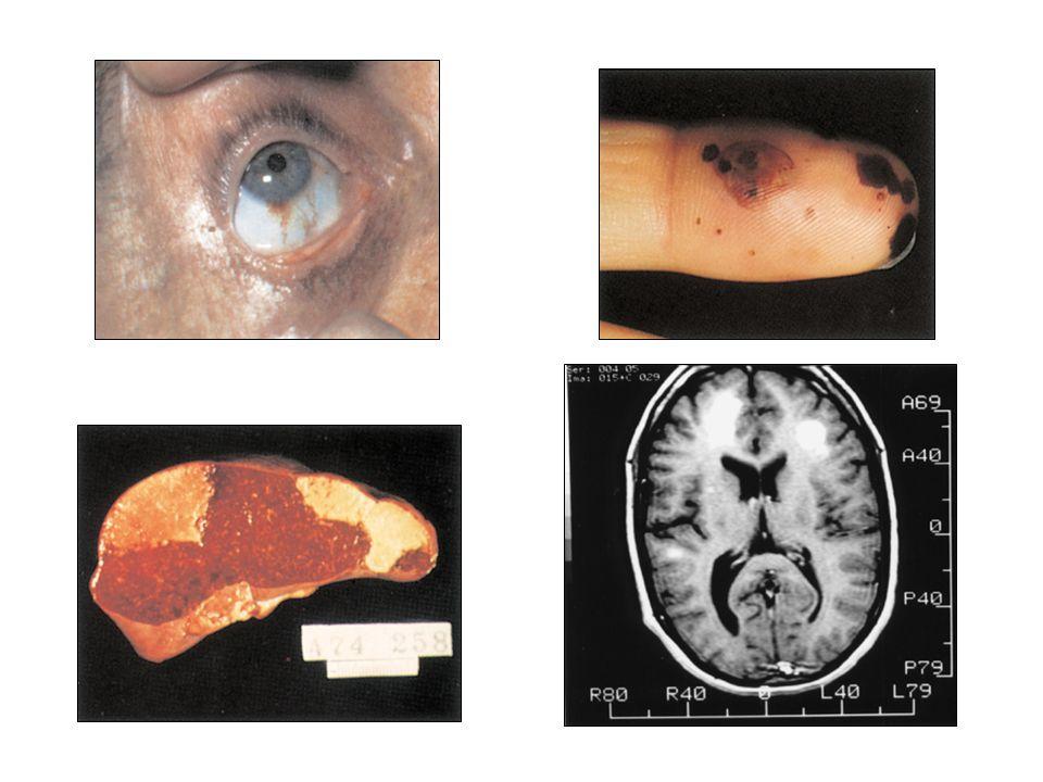 Endocarditis infecciosa NeurológicasNeurológicas –Embolismo cerebral –Abceso cerebral –Aneurismas micóticos –Encefalopatía tóxica –Meningitis RenalesR