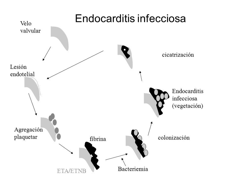 Endocarditis infecciosa Lesión endotelial por factores -hemodinámicos -traumáticos -traumáticos Presencia de inmunocomplejos Depósito de fibrina Endoc