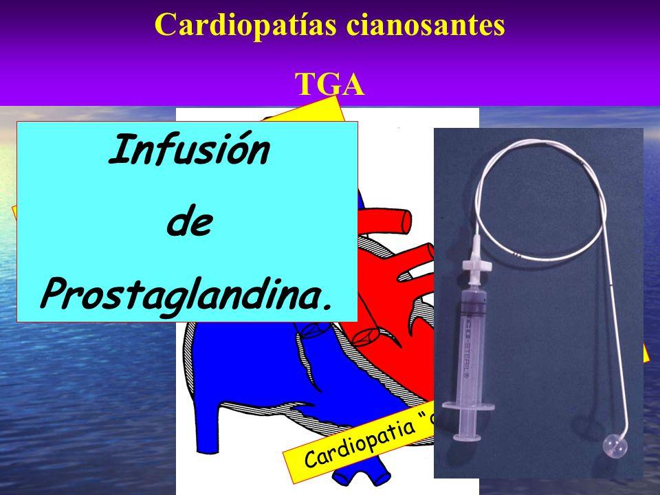 Cardiopatías cianosantes TGA Incompatible con la vida Cardiopatia ductus dependiente Infusión de Prostaglandina.