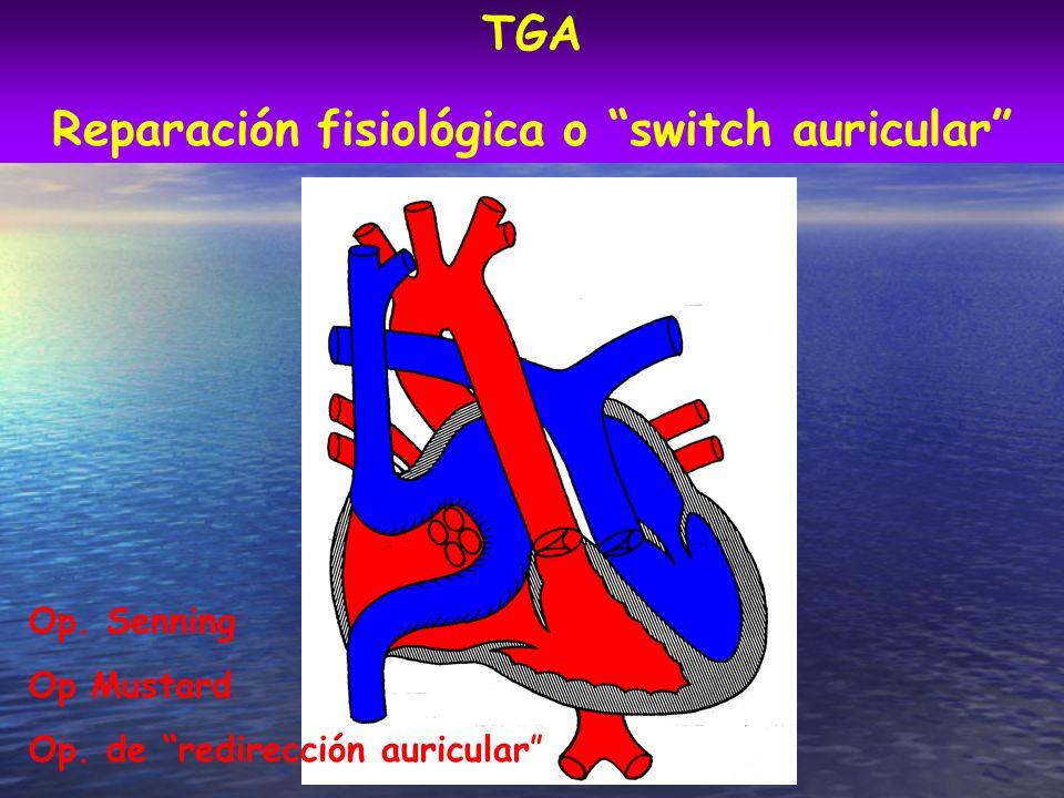 Reparación fisiológica o switch auricular Op. Senning Op Mustard Op. de redirección auricular