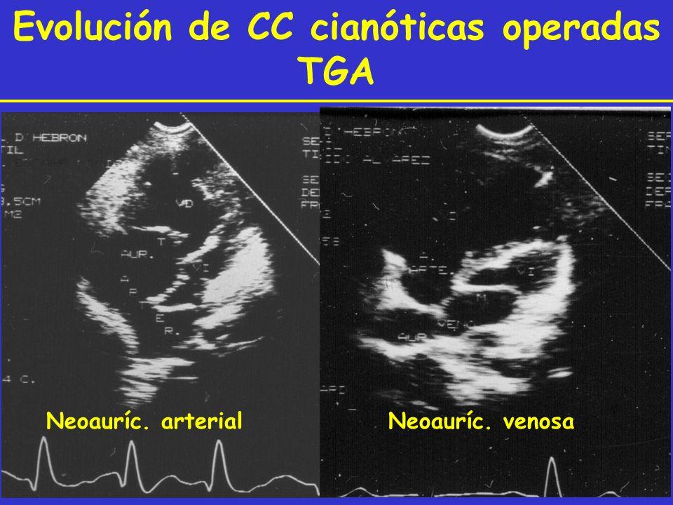 Neoauríc. arterial Neoauríc. venosa