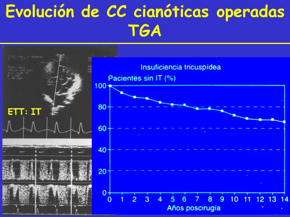Evolución de CC cianóticas operadas TGA ETT: IT ETE: IT ¿?