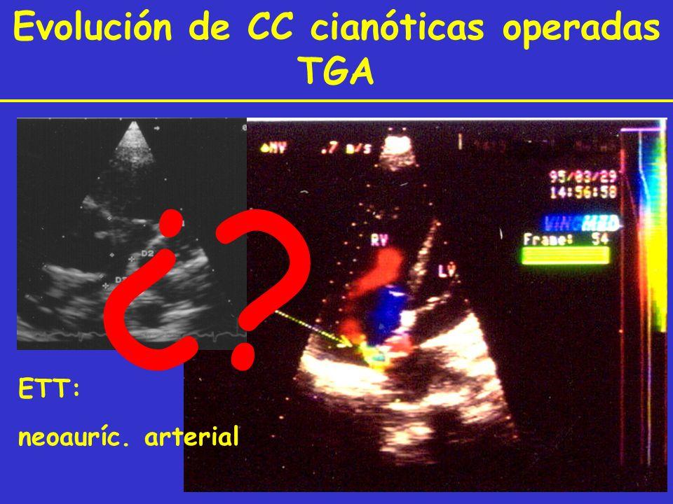 Evolución de CC cianóticas operadas TGA ETT: neoauríc. arterial ¿?