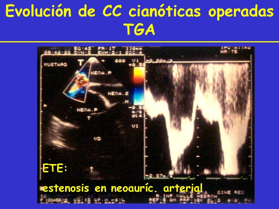 Evolución de CC cianóticas operadas TGA ETE: estenosis en neoauríc. arterial