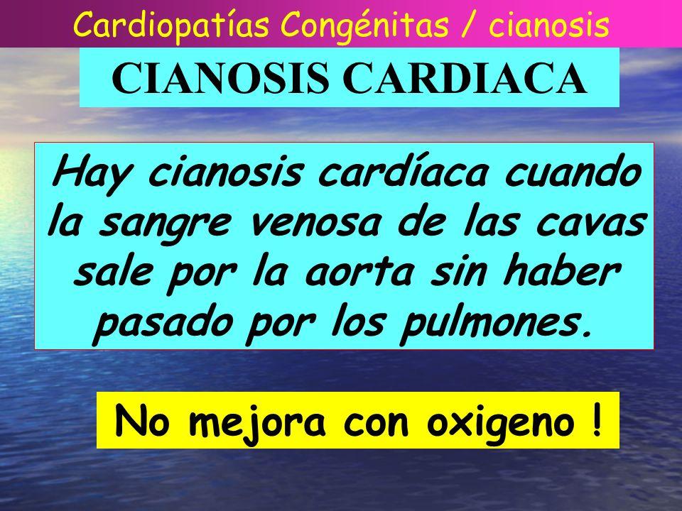 CIANOSIS CARDIACA Hay cianosis cardíaca cuando la sangre venosa de las cavas sale por la aorta sin haber pasado por los pulmones. No mejora con oxigen