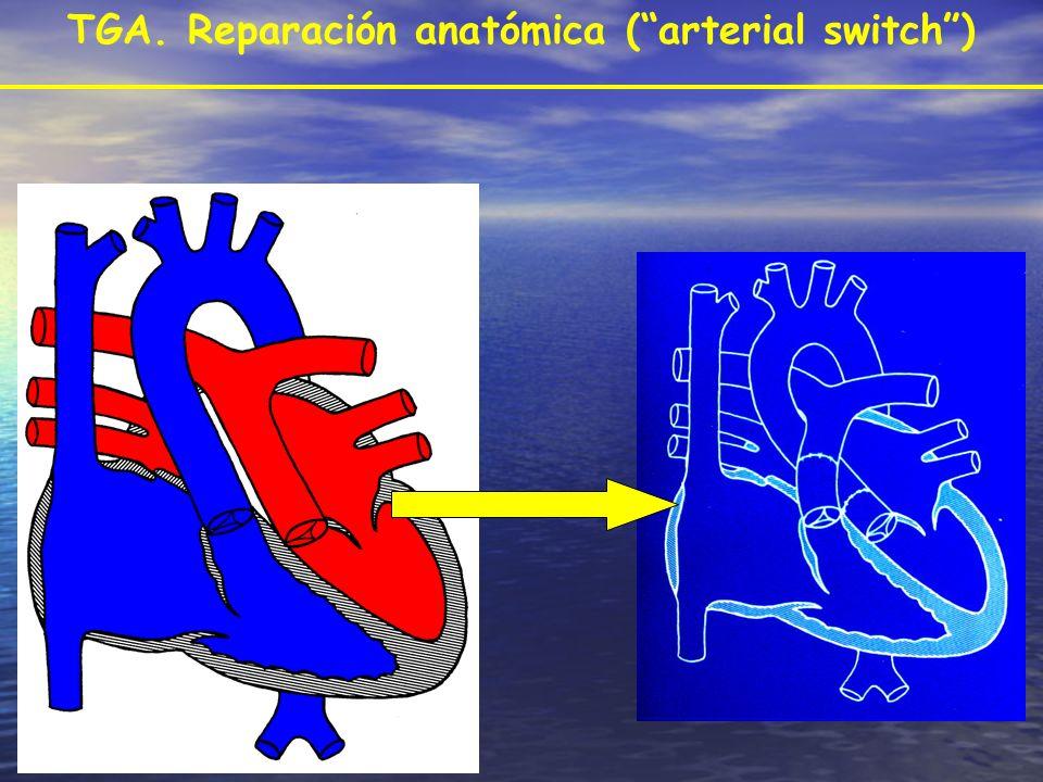 TGA. Reparación anatómica (arterial switch)