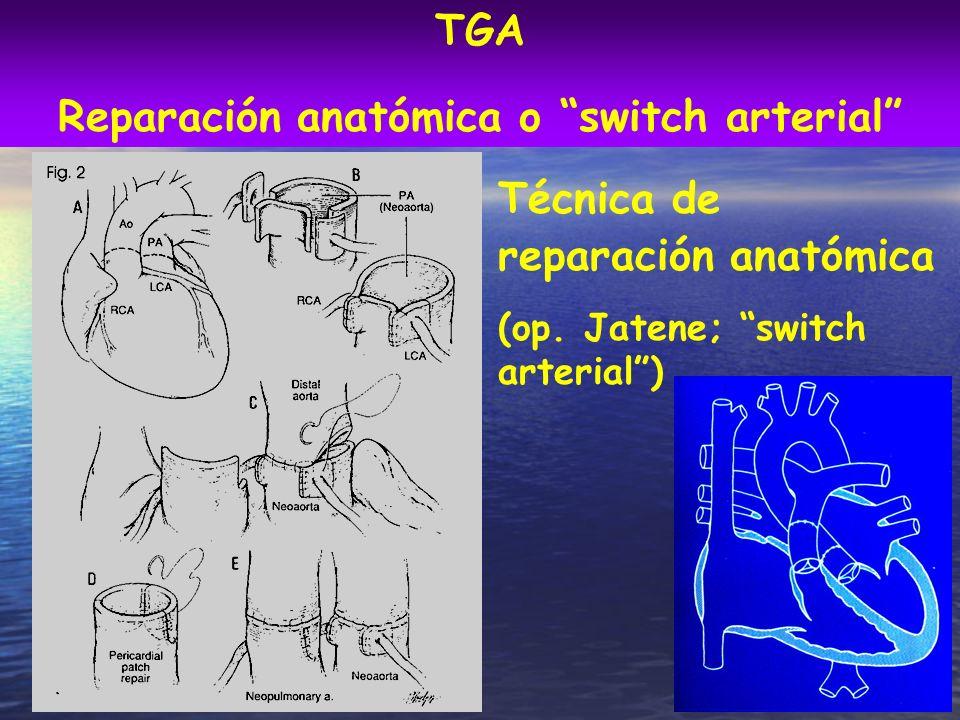 Técnica de reparación anatómica (op. Jatene; switch arterial) TGA Reparación anatómica o switch arterial