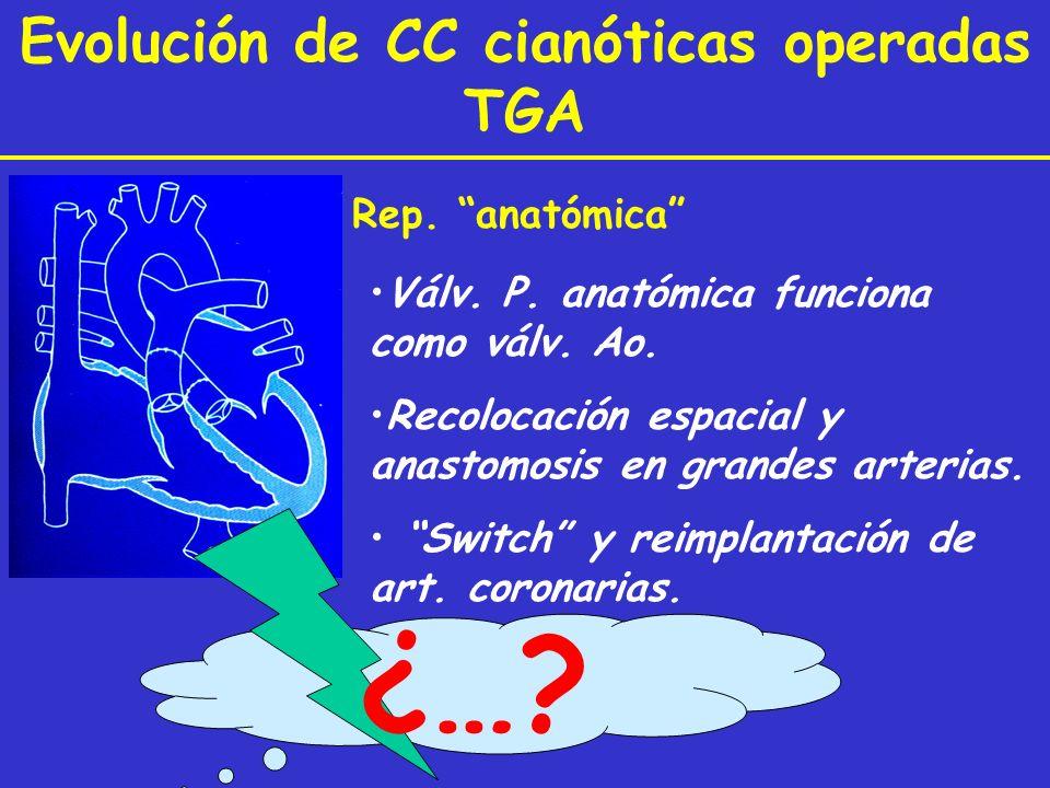 Rep. anatómica Válv. P. anatómica funciona como válv. Ao. Recolocación espacial y anastomosis en grandes arterias. Switch y reimplantación de art. cor