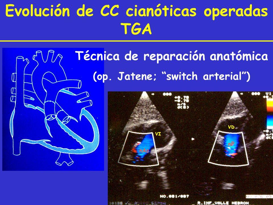 VI nAo VD nP Evolución de CC cianóticas operadas TGA Técnica de reparación anatómica (op. Jatene; switch arterial)