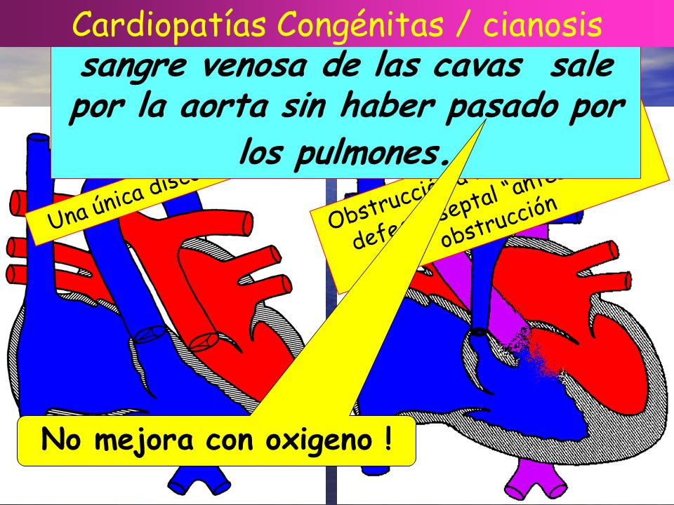 CIANOSIS CARDIACA Una única discordancia Obstrucción a la vía pulmonar + defecto septal antes de la obstrucción Hay cianosis cardíaca cuando la sangre