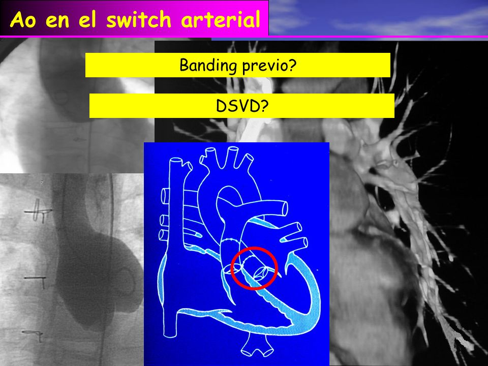 Ao en el switch arterial Banding previo? DSVD?