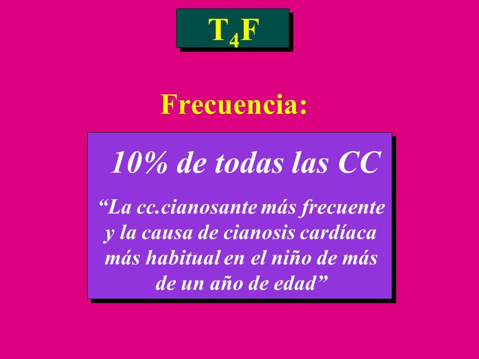 T 4 F Frecuencia: 10% de todas las CC La cc.cianosante más frecuente y la causa de cianosis cardíaca más habitual en el niño de más de un año de edad