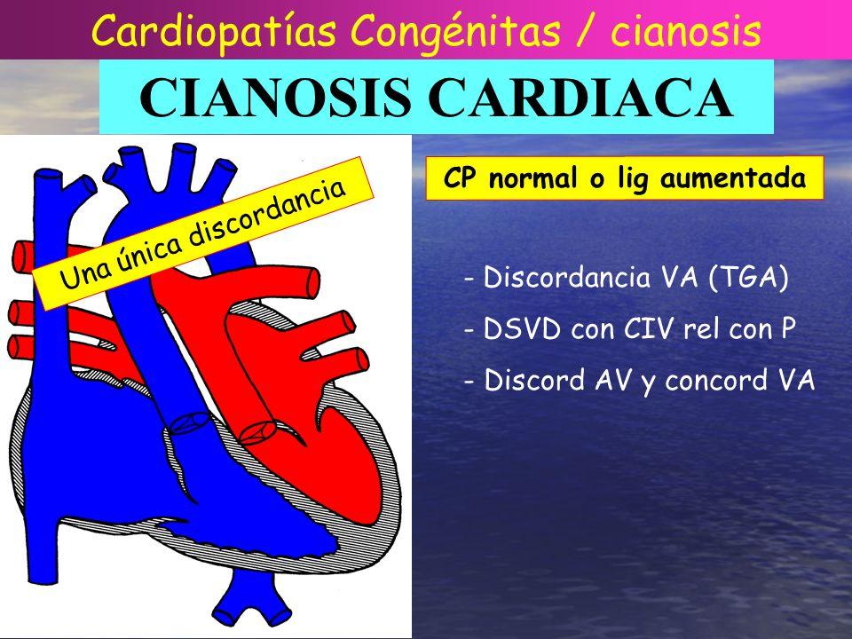 CIANOSIS CARDIACA Una única discordancia CP normal o lig aumentada - Discordancia VA (TGA) - DSVD con CIV rel con P - Discord AV y concord VA Cardiopa